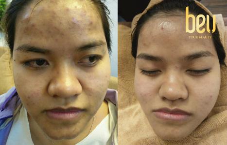 Trần Thị Liên với khuôn mặt thay đổi đáng kinh ngạc chỉ sau 3 buổi điều trị tại BeU Spa