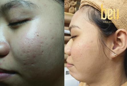Từ làn da đầy sẹo lõm, Nguyễn Tri Thi đã làm thế nào để sở hữu làn da không tỳ vết?