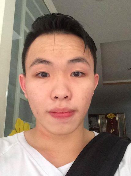 Hoàng Lâm - Kết quả sau trị sẹo, mụn khiến bạn bè bất ngờ